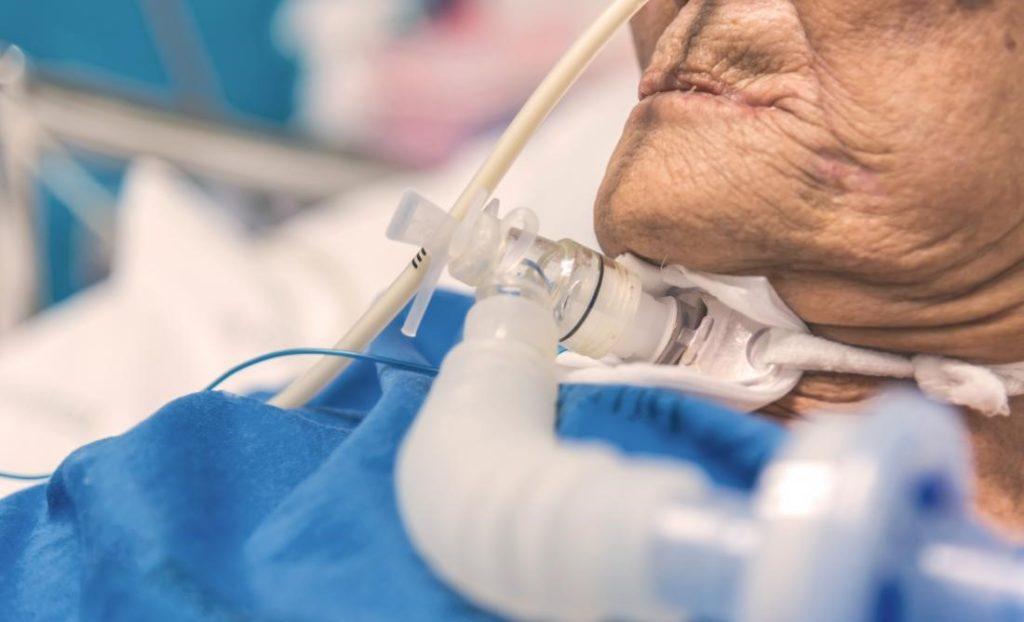 Trakeostomia në pacientët COVID-19 – Dr. Andi Abeshi